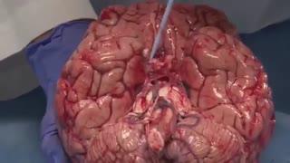 مغزانسان