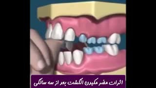 مضرات مکیدن انگشت بعد از سه سالگی   دکتر ندا هادی جراح و دندانپزشک زیبایی