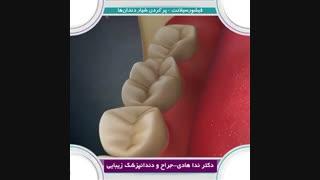 نحوه ی پر کردن شیار دندان ها   دکتر ندا هادی جراح و دندانپزشک زیبایی