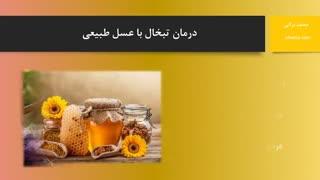 درمان تبخال با عسل خام