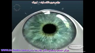 جراحی لیزیک-مرکز چشم پزشکی دکتر علیرضا نادری
