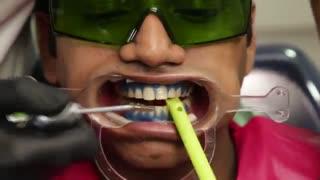 سریعترین و کم هزینه ترین روش سفید کردن دندان