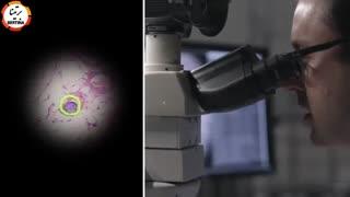 تشخیص سرطان با استفاده از هوش مصنوعی گوگل