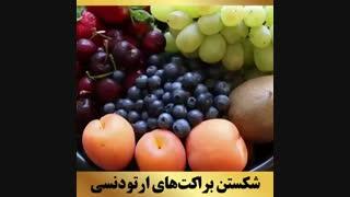 ارتودنسی تهران | دکتر داوودیان