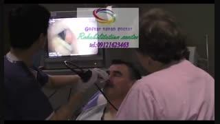 برترین مراکز تصویربرداری حنجره در کرج|گفتار توان گستر البرز09121623463