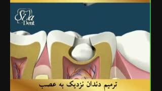 بهترین دندانپزشکی | کلینیک سیمادنت